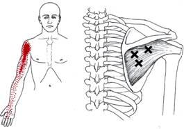 pijn in de bovenarm door triggerpoints